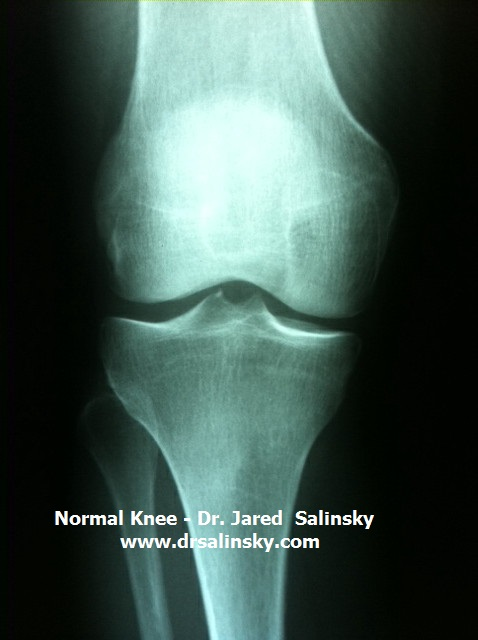 Torn meniscus x ray images — pic 2